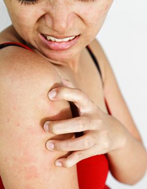Переизбыток витамина С у взрослых и детей: симптомы, признаки, профилактика