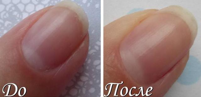 Эффективные витамины для роста и укрепления ногтей