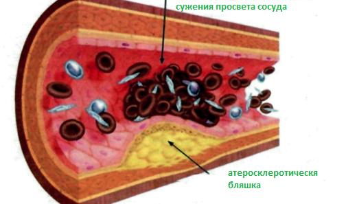 Витрум Кардио Омега 3: инструкция по применению, состав препарата, аналоги