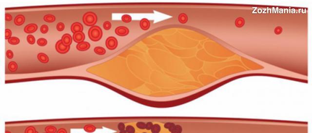 Витамин К2: влияние на организм и описание, препараты и содержание в продуктах питания, дефицит и как восполнить недостаток, опасность передозировки