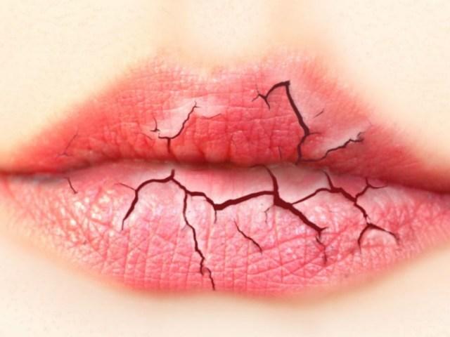 Недостаток витамина А: симптомы у взрослых и детей, последствия