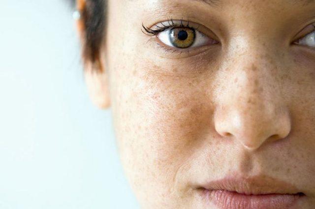 Какие витамины принимать от сухости кожи рук и тела?