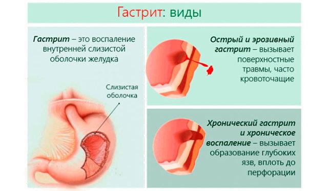 Пижма: лечебные свойства и противопоказания