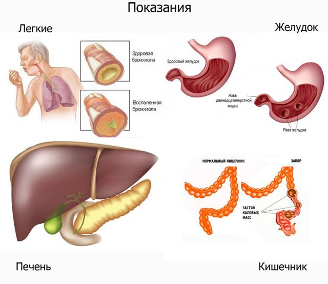 Конский щавель: лечебные свойства и противопоказания