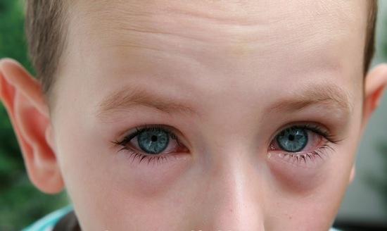 Очанка: лечебные свойства и противопоказания