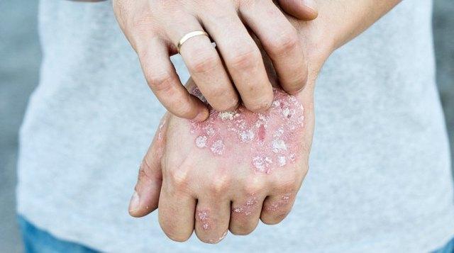Ряска: лечебные свойства и противопоказания